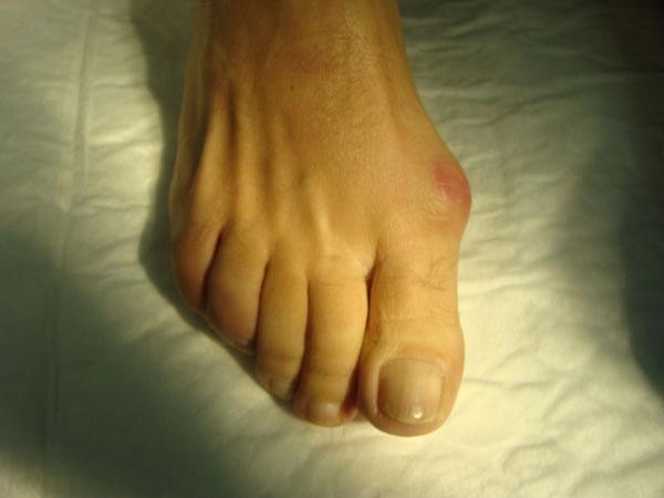 Hallus valgus hallux precio de operacion de juanetes for Operacion de pies